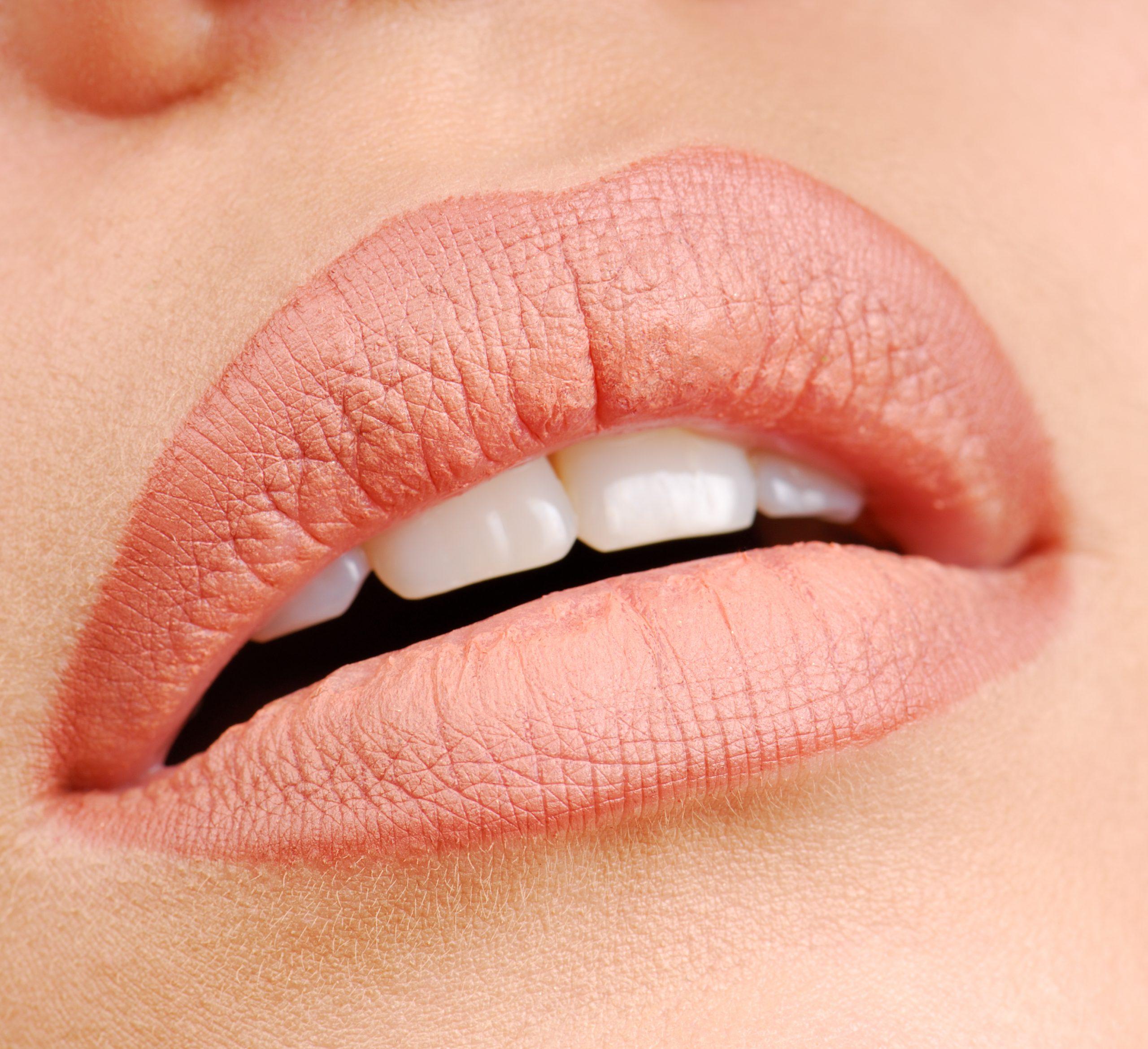 bibir kering